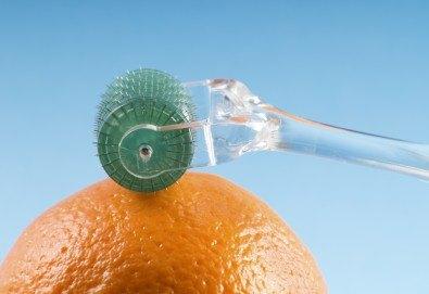 Мезотерапия срещу стрии, белези и целулит на зона по избор с ново поколение смарт мезопистолет и италиански медицински мезококтейли в Skin Nova - Снимка