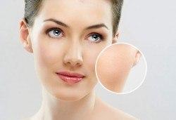 Медицинско почистване на лице с професионална испанска козметика при опитен козметик в Студио за красота Дъга - Снимка