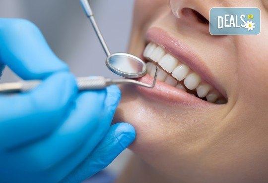 Широка усмивка! Пакет Профилактика и лечение на парадонтит в стоматологична клиника д-р Георгиев - Снимка 1