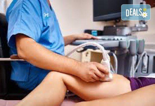 Еходоплер на периферни кръвоносни съдове в областта на корем и долни крайници или шия и горни крайници в МЦ Хелт - Снимка 2