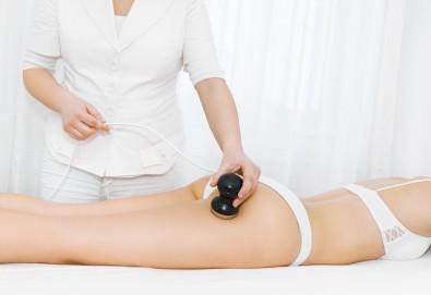 80-минутна антицелулитна моделираща терапия - ръчен масаж, кавитация или RF по избор с иновативна гипс маска + терапия ръце в Салон за красота Вили - Снимка