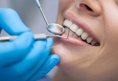Широка усмивка! Пакет Профилактика и лечение на парадонтит в стоматологична клиника д-р Георгиев - Снимка