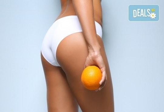 Антицелулитен масаж 1, 3 или 5 процедури с масло от канела и портокал в Салон за красота Вили - Снимка 1