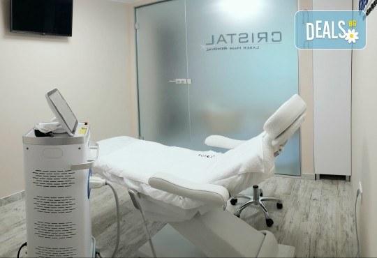 Перфектно докосване! Лазерна епилация за жени на зона по избор с японски лазер Fotora Power Laser в новооткритото студио Cristal - Снимка 5