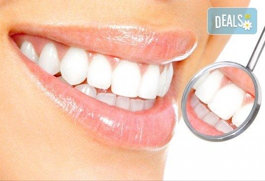 Обстоен преглед, почистване на зъбен камък с ултразвук и полиране в дентален кабинет DentaLuX - Снимка 2