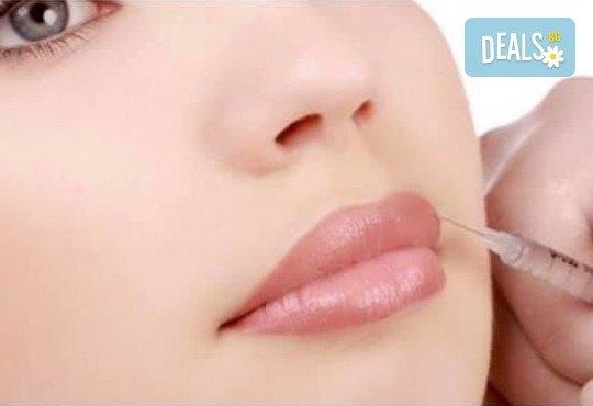 Уголемяване на устни с 1мл хиалуронов филър извършено от лекар-специалист в Медицински център за медико-естетични процедури! - Снимка 4