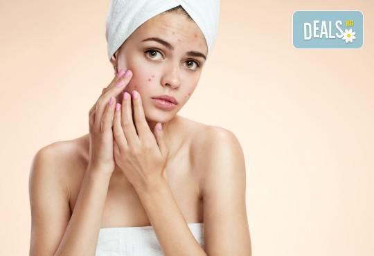 Почистване на лице за чувствителна или проблемна кожа, лечебна антиакне терапия, консултация и насоки от специалист от салон Вили - Снимка 1