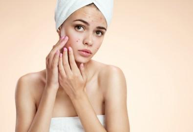 Почистване на лице за чувствителна или проблемна кожа, лечебна антиакне терапия, консултация и насоки от специалист от салон Вили - Снимка