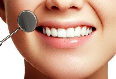 Обстоен дентален преглед, план за лечение, почистване на зъбен камък с улразвук, полиране и почистване на петна с Airflow, визуализация на плака и професионални съвети за орално здраве от Д-р Киров - Снимка