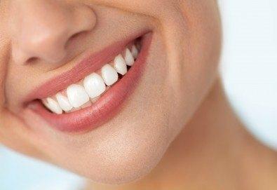 За искряща усмивка! Почистване на зъбен камък, полиране на зъбите и преглед в Дентален кабинет д-р Снежина Цекова - Снимка
