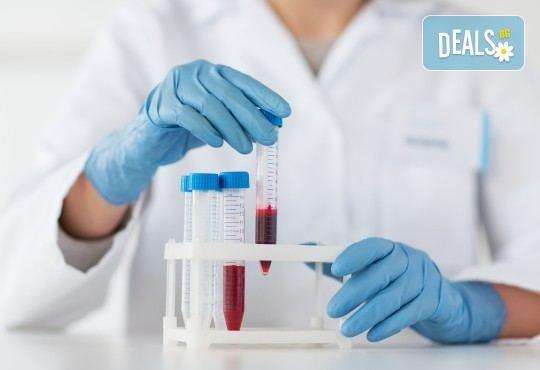 Изследване на TSH: хормонално изследване на щитовидната жлеза и включена такса за вземане на кръв в Лаборатории Кандиларов в София, Варна, Шумен или Добрич - Снимка 2