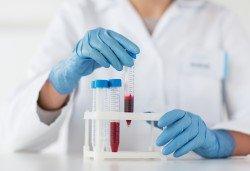 Направете си пакет изследвания за остеопороза в СМДЛ Кандиларов - Снимка