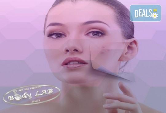 За млада и красива кожа! Радиочестотен RF лифтинг на лице в BodyLab Studio - Снимка 2