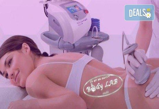 За млада и красива кожа! Радиочестотен RF лифтинг на лице в BodyLab Studio - Снимка 6