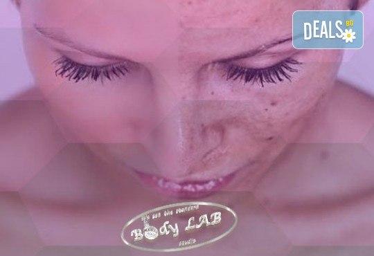 За млада и красива кожа! Радиочестотен RF лифтинг на лице в BodyLab Studio - Снимка 4