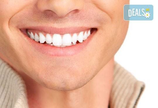 Професионално избелване на зъби с Pure Whitening System, почистване на зъбен камък, полиране и преглед в ПримаДент! - Снимка 1