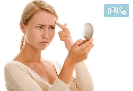 Подарете си филър за устни или попълване на бръчки с хиалуронова киселина: 0.5 мл или 1 мл! Бързо, безопасно и безболезнено! - Снимка 2