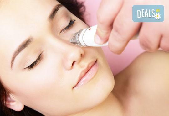 Върнете свежия вид на Вашето лице! Изберете изглаждане на бръчки с филър или подмладяваща терапия с хиалурон в Be Happy! - Снимка 2