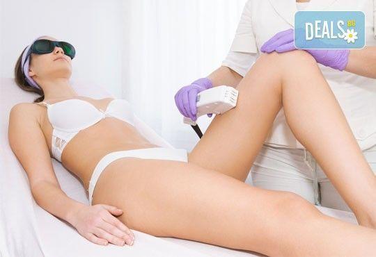 Гладка кожа за дълго време! E- light фотоепилация на крака, интим и мишници по избор в студио Beauty, Лозенец! - Снимка 1
