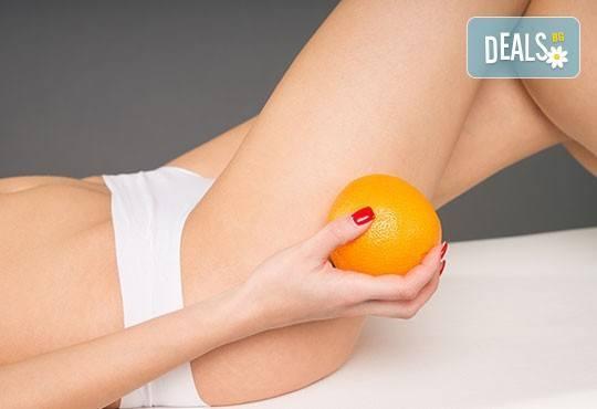 Антицелулитна процедура срещу затлъстяване и портокалова кожа на лаборатории Тегор от центрове Енигма - Снимка 2
