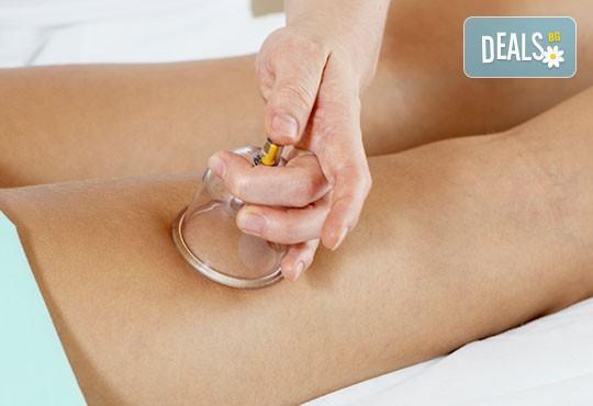Оформете тялото си с антицелулитна терапия - вакумен масаж, RF и кавитация в салон Nails club в Младост 4! - Снимка 1