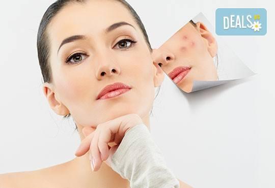 Перфектно лице! Почистване на лице и антиакне, избелваща или подмладяваща терапия по избор от студио за красота Five! - Снимка 1