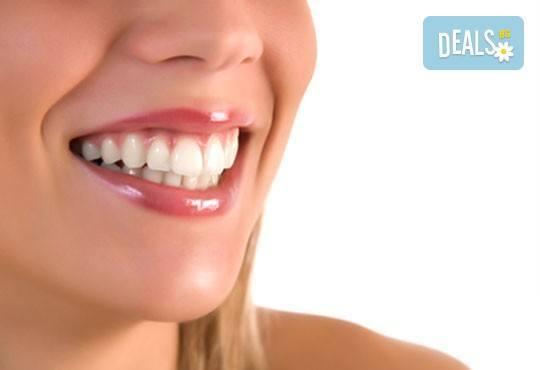 Почистване на зъбен камък и плака с ултразвук, полиране с Air Flow, бонус обстоен стоматологичен преглед от д-р Джорджев - Снимка 3