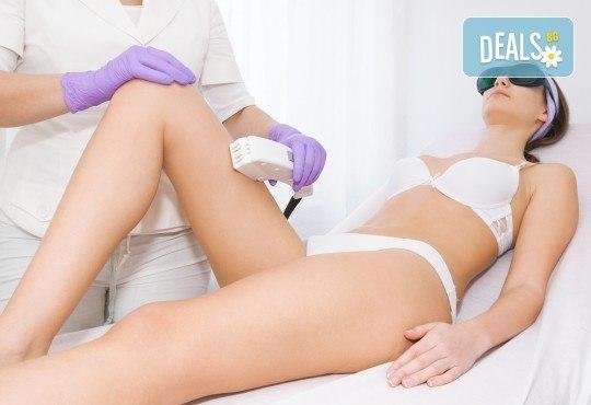 Избавете се от окосмяването! Вземете IPL фотоепилация на цели крака и 2 зони по избор в салон Орхидея! - Снимка 3