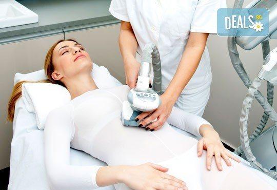Сбогувайте се с целулита с 1/5 процедури LPG на зона по избор + 10 минути кавитация в козметичен център ''DR.LAURANNE''! - Снимка 1