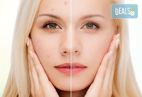 Терапия за подпомагане лечение на акне и проблемна кожа, светлинна терапия в център Здраве и красота! - Снимка 1