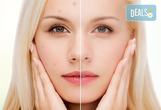 Почистваща терапия за лице за свежа, блестяща и чиста кожа, заредена с енергия и живот в салон за красота Ванеси! - Снимка 2