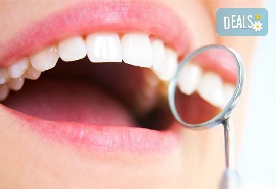 Почистване на зъбен камък с ултразвуков скалер в дентален кабинет д-р Чорбаджаков - жк Дружба - Снимка 2