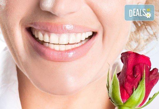 Металокерамична коронка, обстоен стоматологичен преглед и план на лечение в Дентална клиника Персенк! - Снимка 1