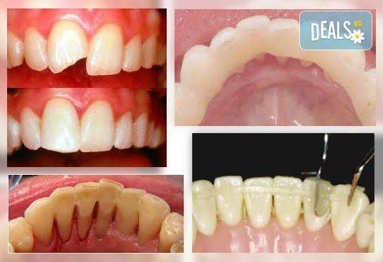 Шиниране на разклатен, парадонтозен зъб с трипластова фибро шина на швейцарската фирма Polydentia в Дентална клиника Персенк! - Снимка 2