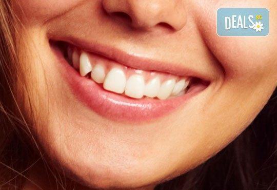 Шиниране на разклатен, парадонтозен зъб с трипластова фибро шина на швейцарската фирма Polydentia в Дентална клиника Персенк! - Снимка 1