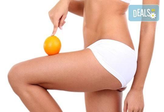 Балансирайте тялото си с 30-минутен мануален антицелулитен масаж на всички засегнати зони в Салон Голд Бюти! - Снимка 1