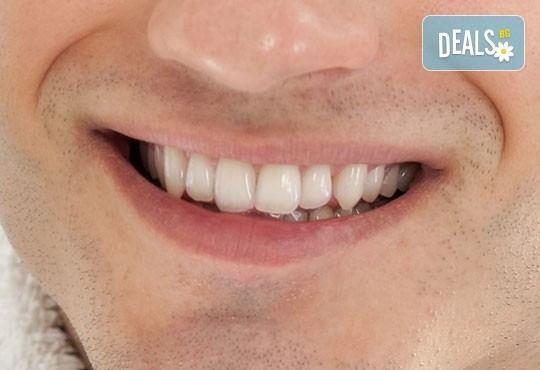 Грижа за красива усмивка! Обстоен стоматологичен преглед и почистване на зъбен камък, бонус от дентален кабинет д-р Шабанска! - Снимка 1