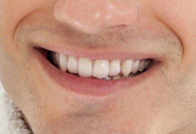 Грижа за красива усмивка! Обстоен стоматологичен преглед и почистване на зъбен камък, бонус от дентален кабинет д-р Шабанска!