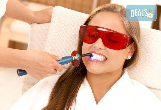 Възползвайте се от безболезнена процедура за красива и сияйна усмивка! Професионално избелване на зъби от д-р Екатерина Петрова! - Снимка 1