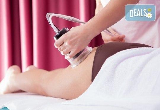 За сатенена кожа! Антицелулитен масаж на всички зони с вендузи и боди рапинг - 5 или 10 процедури от салон Лаура стайл! - Снимка 1