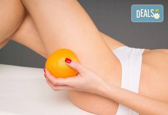 В перфектна форма! Направете 1 или 3 процедури антицелулитен масаж на ТРИ зони, 45 минути в Chocolate Studio - Снимка 1