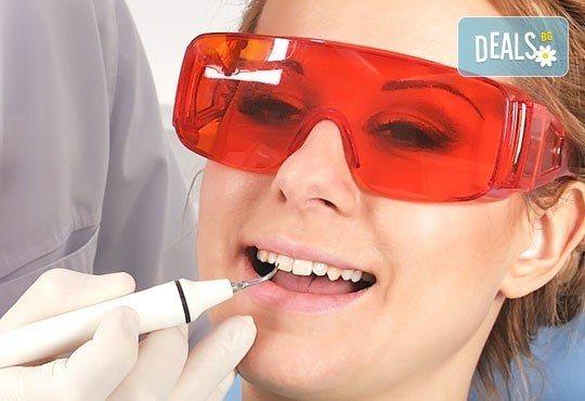 Професионално избелване на зъби с фотополимерна лампа, почистване на зъбен камък, полиране на зъбите, преглед и план на лечение от д-р Чорбаджаков, ж.к. Дружба - Снимка 2