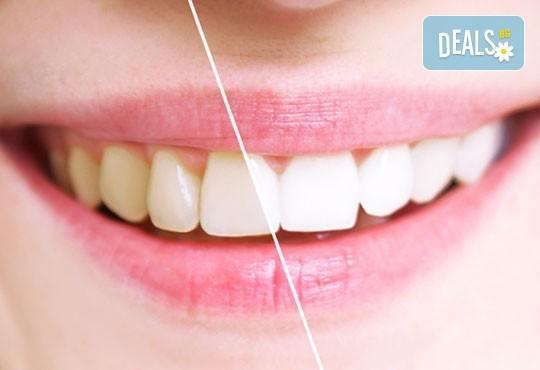 Професионално избелване на зъби с фотополимерна лампа, почистване на зъбен камък, полиране на зъбите, преглед и план на лечение от д-р Чорбаджаков, ж.к. Дружба - Снимка 1