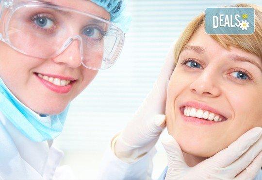 Фотополимерна пломба, преглед, план на лечение и почистване на зъбен камък в Дентален кабинет д-р Маринашева - Снимка 1