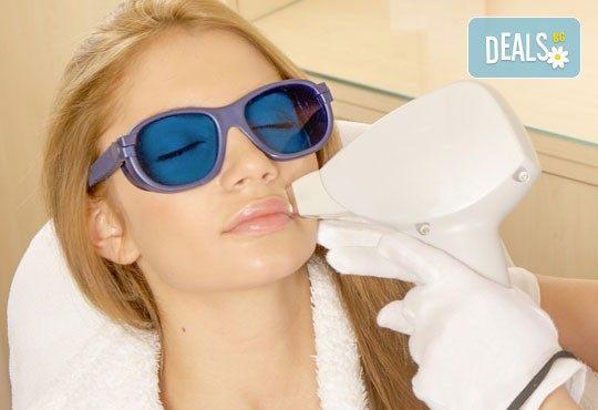 Дълготрайна и безболезнена IPL фотоепилация на горна устна или брадичка по избор в салон за красота Елинор! - Снимка 2