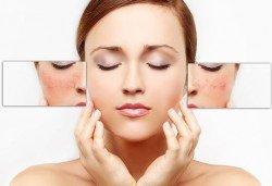 70% отстъпка от лечение на акне, белези и петна на лице, чрез неинжективна мезотерапия с БиоАрсон и ДНК комлекс в Енигма - Снимка