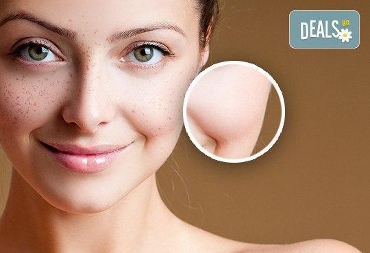За безупречна кожа! Ултразвуково почистване на лице и избелваща терапия с природна киселина за лечение на пигментни петна, Д&В, Студентски град - Снимка 3