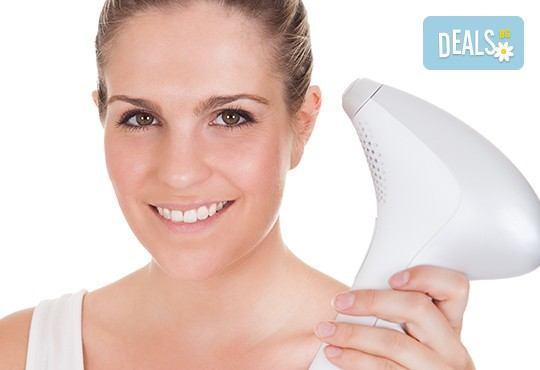 IPL премахване на пигментни петна на лицето - високотехнологична медицинска процедура от Sin Style - Снимка 2