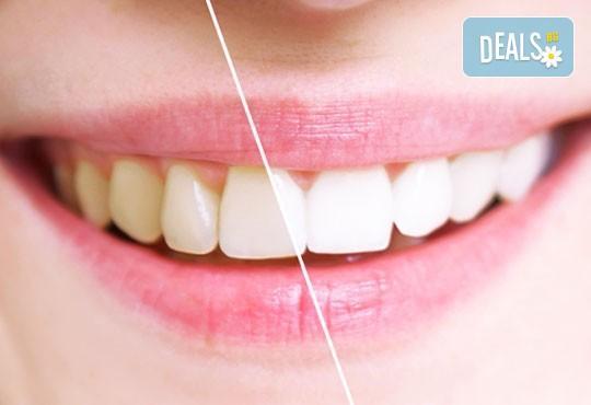 Система за избелване на зъби в домашни условия, с индивидуално изработени силиконови шини и избелващ гел Opalescence, от клиника Рея Дентал! - Снимка 2