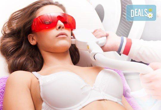 Нежна и гладка кожа с фотоепилация IPL на зони по избор в салон за красота Vogue - Снимка 1